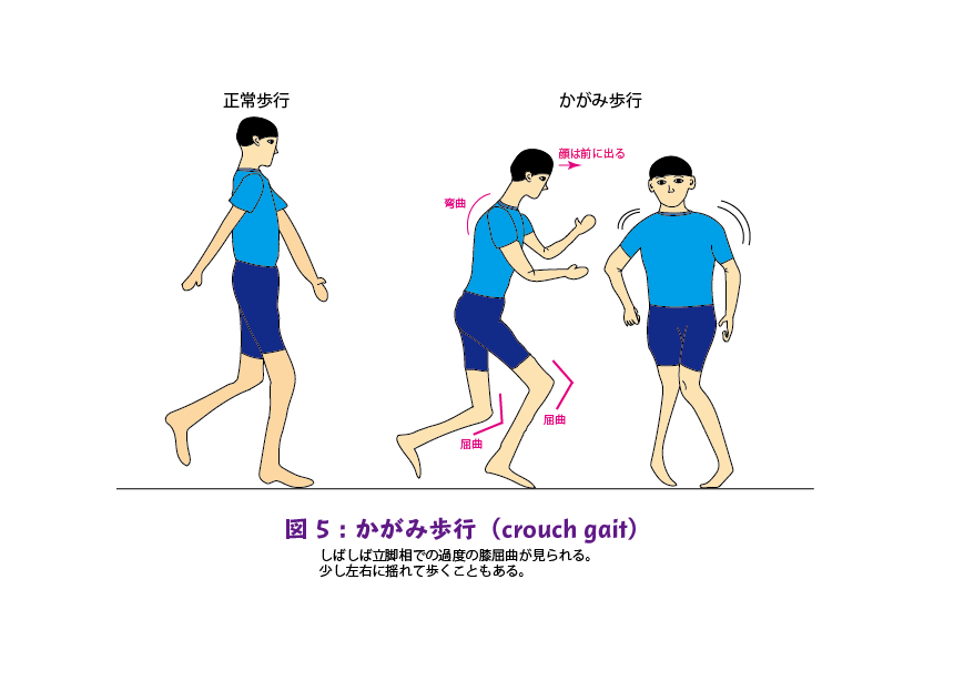 図5:かがみ歩行
